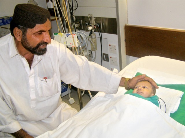 Mohammad Ahmed Baloch, the child to survive with an artificial heart. Photo Credit: Express